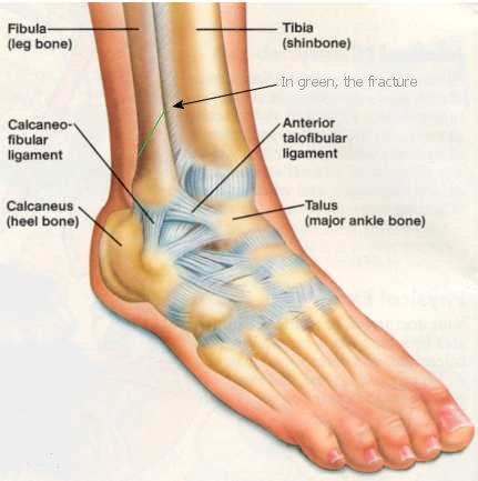 how to break an ankle with your hands